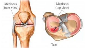 meniscus tear surgery meniscus tear meniscus surgery meniscus repair knee swelling knee surgeon knee pain knee injury baton rouge