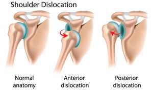 shoulder surgery shoulder specialist shoulder pain shoulder instability shoulder doctor shoulder dislocation rotator cuff tear labral tear bankart