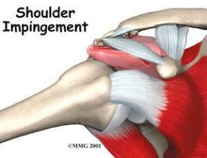 subacromial spurring shoulder tendinitis shoulder surgery shoulder pain shoulder hurts rotator cuff impingement pain with overhead activity orthopedics orthopedic surgery orthopedic surgeon impingement bursitis baton rouge